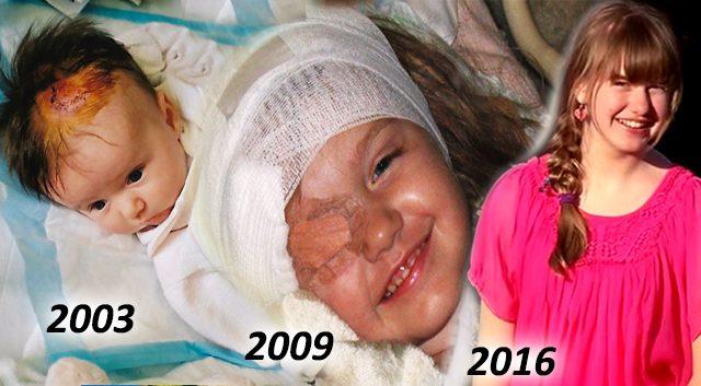 """""""절대 포기하지 마세요""""-14년 동안 20번의 수술을 이겨낸 소녀 이야기"""