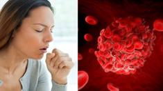 우리가 상식적으로 알아야 할 혈액 문제 8가지 공통 증상