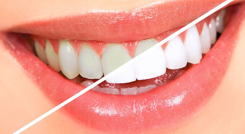 셀프 치아 미백을 위한 간단한 '꿀팁' (영상)