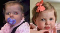 """""""우리 아기 사진, 눈동자가 이상하네""""..병원에 가봤더니 '헉'"""