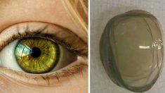 백내장 수술 전 발견한 '27겹의 렌즈'