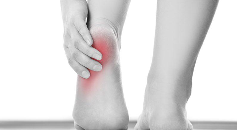맨발에 슬리퍼·샌들 착용 조심..족저근막염 위험