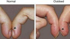 '손톱 모양' 굽어 있다면 '심장·폐' 안 좋을 수 있다