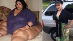 몸무게 450kg→90kg 폭풍감량한 美 여성의 구슬픈 사연
