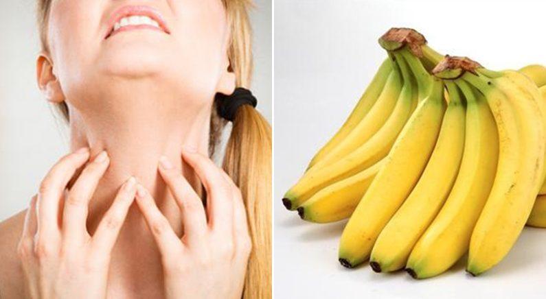 심한 바나나 알레르기를 가진 선생님에게 바나나로 장난친 학생