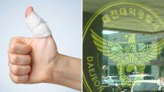 """""""손가락이 어디 있는지 모르겠어요"""" 경찰 덕분에 무사히 봉합 수술 마친 남성"""