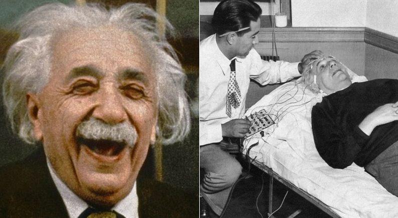 아인슈타인의 뇌가 240조각으로 잘려 전 세계에 뿔뿔이 흩어졌다